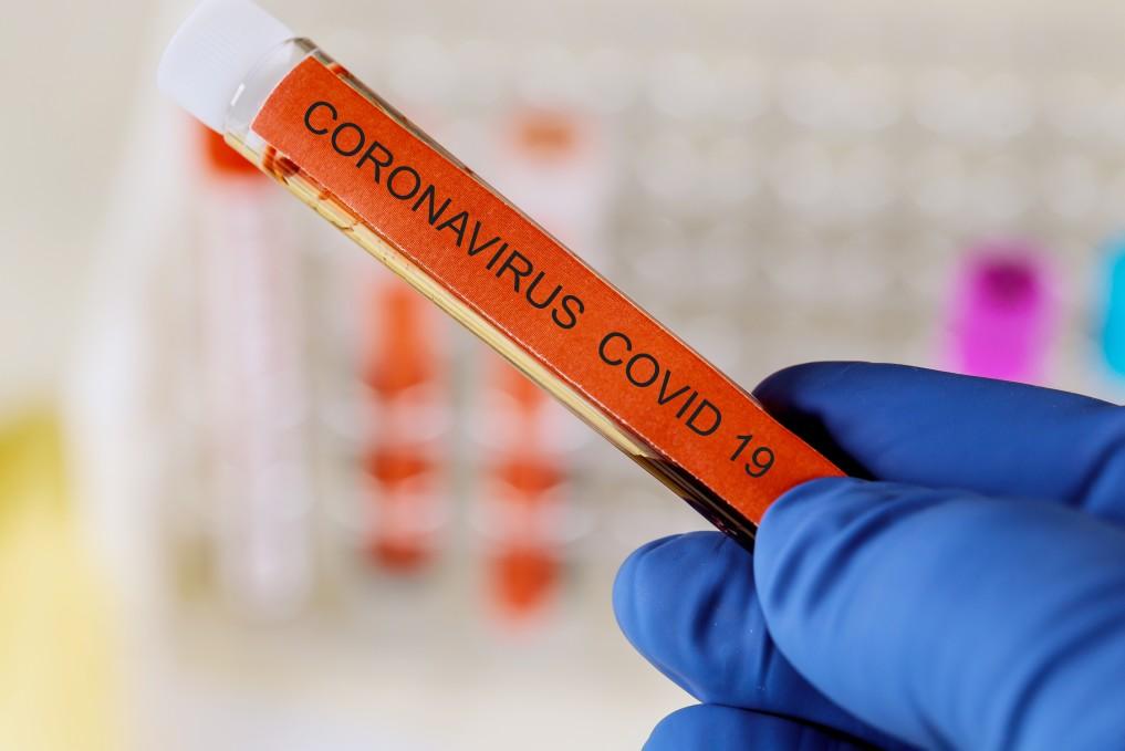di positivo en coronavirus